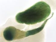 Figure 2c - mutations in the tyrosine kinase NTRK2