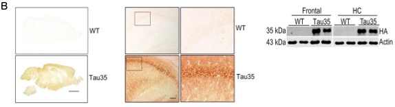 Figure 1b - Tau35 mice