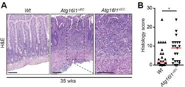 Figure 1 - Atg16l1ΔIEC mice