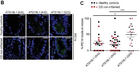 Figure 2b - Atg16l1ΔIEC mice
